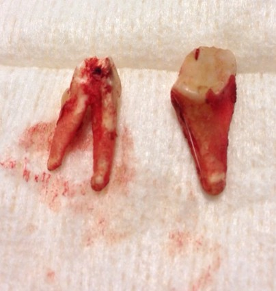 and this is the tooth they removed!
