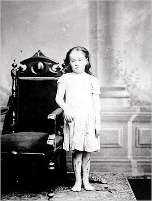 Mary Ellen Wilson, the first child removed from a home because of abuse.