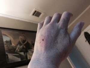 Here's what my hand looked like Monday.