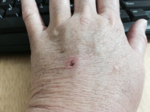 Here's my hand today. The swelling has finally dissipated.